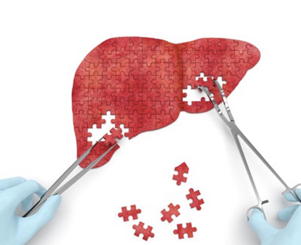 v-wellness-Liver-Detox